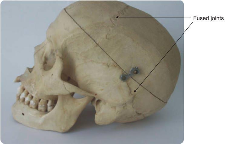 Fixed Joint Skull